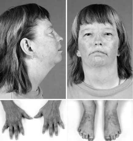 Andersen Tawil Syndrome