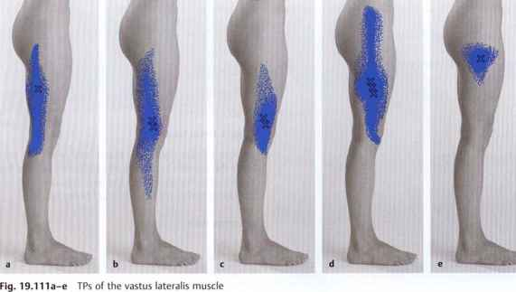 Muscles of Hip Thigh and Knee Pain - Muscle Chains - Fitness VIP